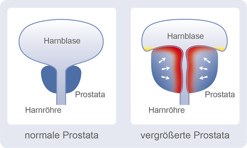 euviril - Die Prostata das Männerorgan
